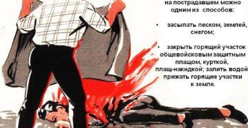 Как потушить одежду на человеке. Тушение горящей одежды на человеке